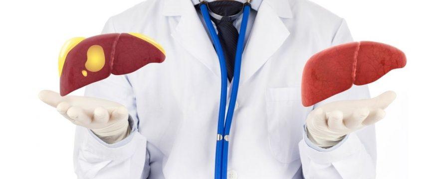 Cómo limpiar el hígado graso